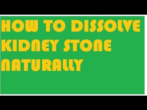 dissolve kidney stone naturally