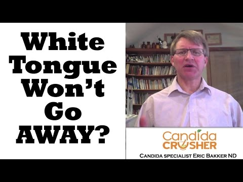 My White Tongue Wont Go Away What Can I Do?