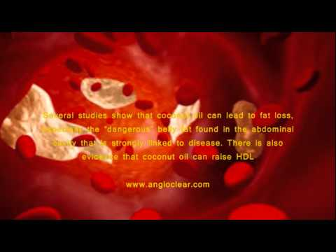 How To Unclog Arteries Fast   What Is The Fastest Way To Clear Clogged Arteries