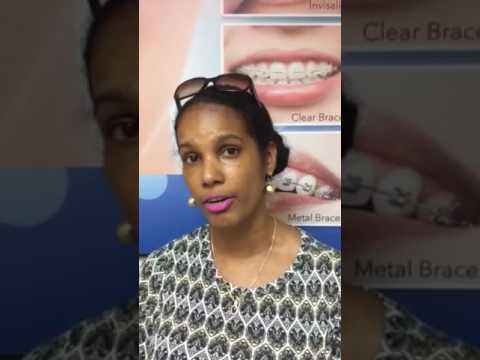 Patient testimonials of Diamond Braces