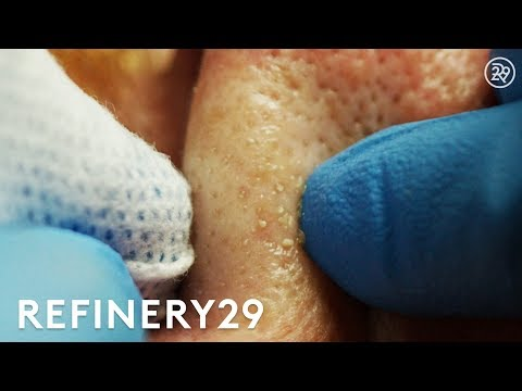 Why Extractions Are Satisfying To Watch But Dangerous   Macro Beauty   Refinery29
