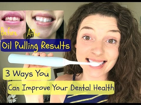 Oil pulling before and after  |  30 day results
