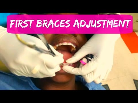 First BRACES ADJUSTMENT or BRACES TIGHTENING