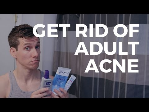 Still Getting Acne In Your 20's and 30's? | How To Treat Adult Acne
