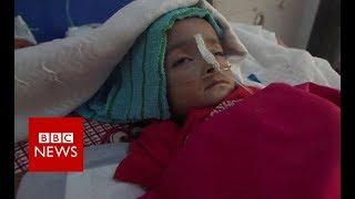 Yemen: The plight of the children - BBC News