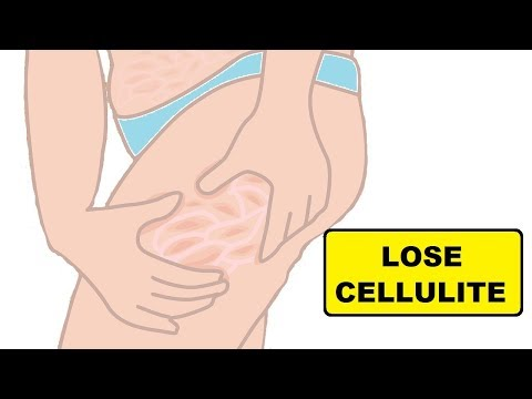 HOW TO GET RID OF CELLULITE ON YOUR LEGS, BUTT AND THIGHS