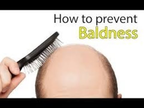 How to prevent baldness in Men (What to do/TIPS)