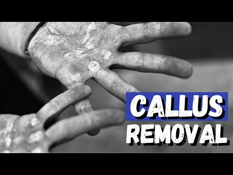 Hand Callus Removal | Get Rid of that Hard and Rough Skin!