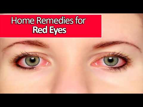 Herbal Remedy For Red Eyes Is Goldenseal- Best Home Remedy For Red Eyes