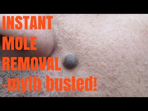 Instant Mole Removal-myth busted