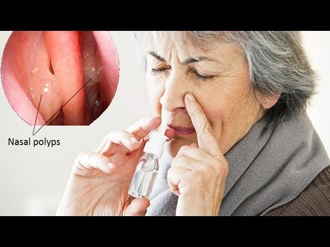 How To Cure Nasal Polyps Permanently | Natural Home Remedies for Nasal Polyps
