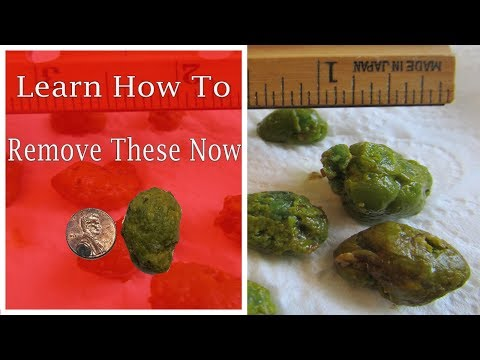 How to perform A Very Successful Liver/Gallbladder Flush