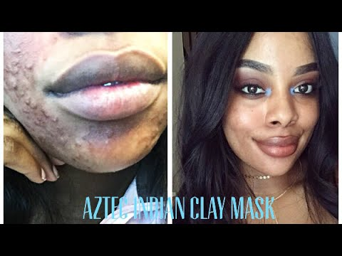 AZTEC INDIAN CLAY MASK gave me 2ND DEGREE BURNS + Pictures!