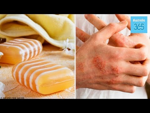 Homemade Glycerin, Propolis, and Clay Soap for Dermatitis - Australia 365