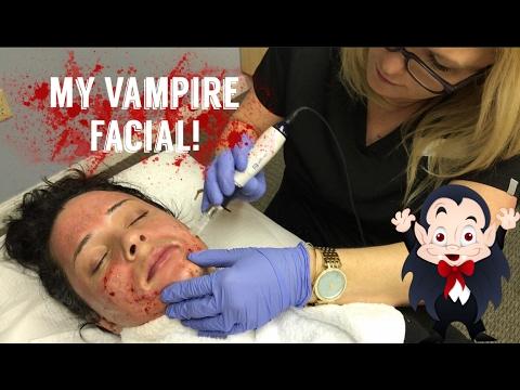 My First Vampire Facial!