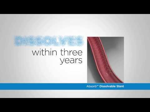 Dissolvable stents for coronary artery disease at Via Christi