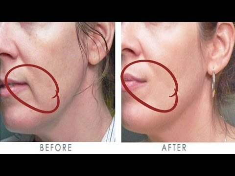 How to get rid of wrinkles above your lips in just few days
