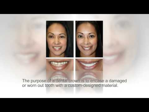Dental Crowns Replacement at Cosmetic Dental Associates San Antonio, TX Dental Office
