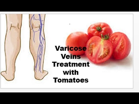 How to Treat Varicose Naturally and Safely With Tomatoes