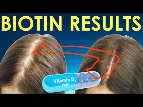 BIOTIN HAIR GROWTH RESULTS before and after - BIOTIN RESULTS for hair regrowth and hair loss