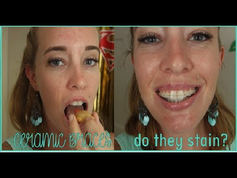Ceramic Braces worth getting? | Do they stain?
