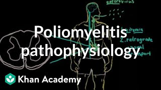 Poliomyelitis pathophysiology | Infectious diseases | NCLEX-RN | Khan Academy