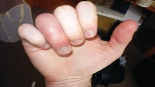 How To Treat A Jammed Finger