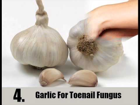 7 Home Remedies For Toenail Fungus