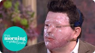 Andreas Christopheros Describes Horrific Acid Attack | This Morning