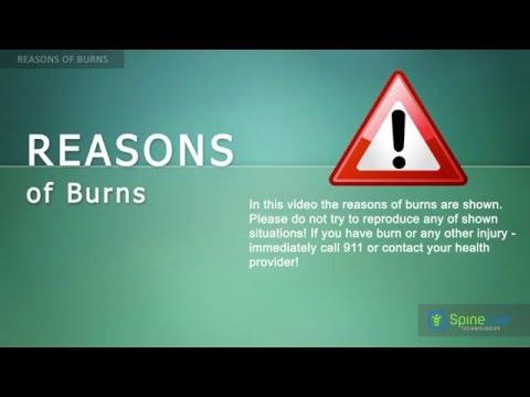 Burns. Reasons