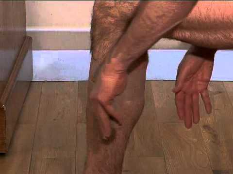 Strapping and Taping for Calf Tear, pull or strain during running