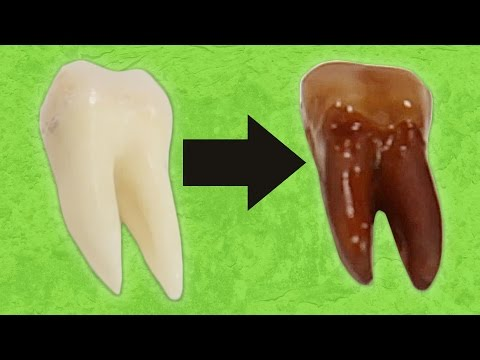 What Happens When You Put Teeth In Soda