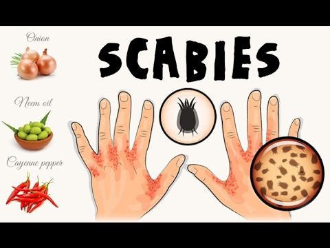 How To Cure Scabies Naturally After Apply this Effective Remedies