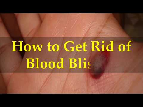 How to Get Rid of Blood Blisters