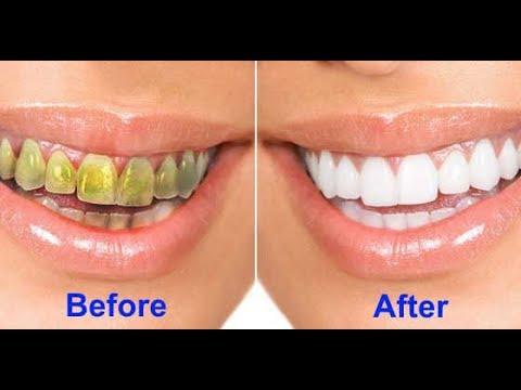 How to get CRYSTAL WHITE TEETH IN 2 MINUTES!! Get Pearly White Teeth at Home