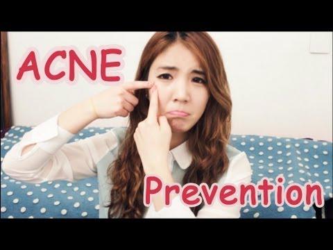 Acne Prone Skin Series #1-How to prevent it! | Wishtrend
