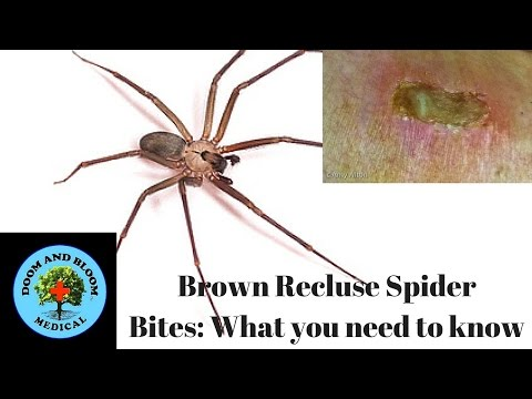 Brown Recluse Spider Bites: What you need to know