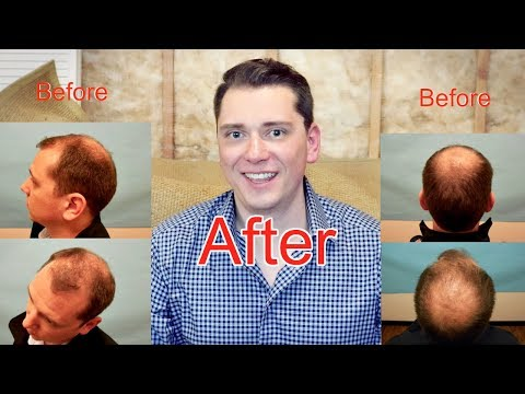 The Hair Transplant Tipping Point - Before And After (Marius' Story)