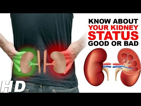 How To Know About Your Kidney Status Good Or Bad ? Watch video if you have  any kidney problems.