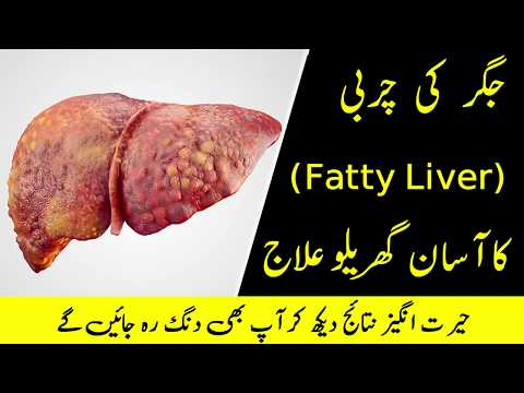 Fatty Liver (Treatment) Ka Ilaj