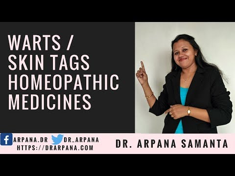 Different Types Of Warts Or Skin Tags (मस्सा, तिल) & How To Treat With Homeopathic Medicines