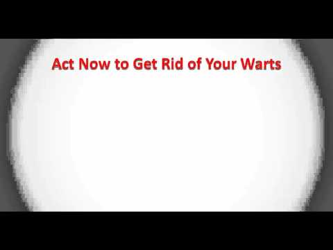 Wart Remover - All Natural Wart Removal Treatments