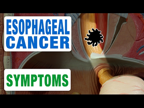 Esophageal Cancer - All Symptoms