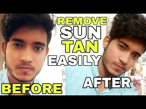 How To Remove Sun Tan | Hindi | How To Protect Skin From Sun Tan | How To Prevent Sun Tan