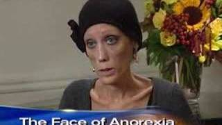 Download Anorexia's Living Face (CBS News) Video
