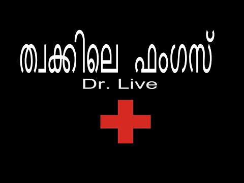 Skin fungal infection | Doctor Live 31th October 2015