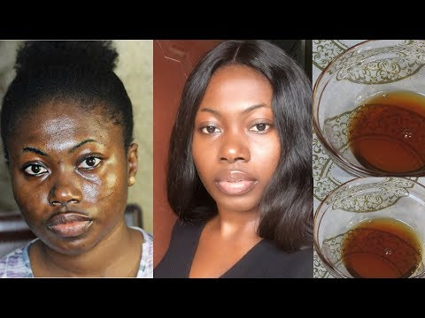 I USED THIS SOLUTION TO GET RID OF DARK SPOTS IN 7 DAYS