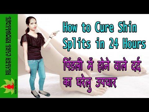 How to cure shin splints in hindi ll पिंडली के दर्द में होने वाला घरेलु उपाय