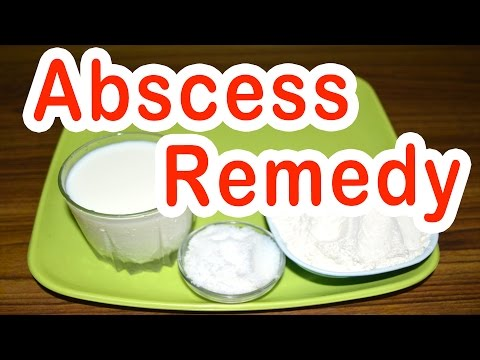 Home Remedy for Abscess
