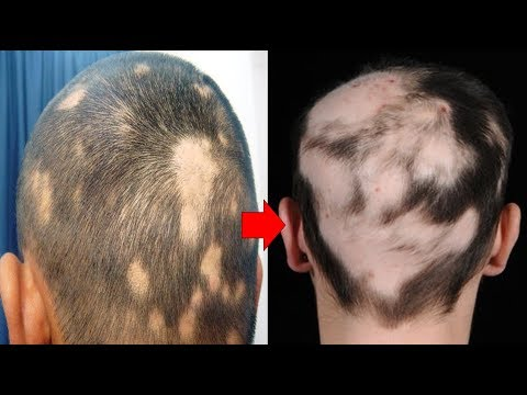Can Men Experience Traction Alopecia ?